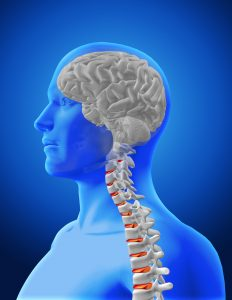 Lawsuits Involving Traumatic Brain or Spinal Injury