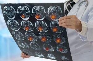 Newton Traumatic Brain Injury Accident Attorney Recovers Compensation
